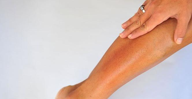 Если у вас очень сухая кожа рук и ног - это не только косметическая проблема, такой признак может указывать на заболевание, неправильный уход, недостаток витаминов, возрастные изменения и наследственную предрасположенность.