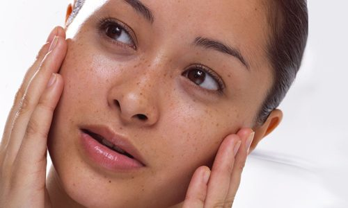 рожистое воспаление кожи