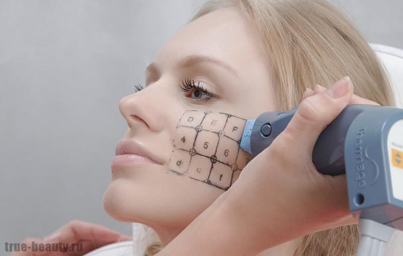 термаж лица отзывы косметологов